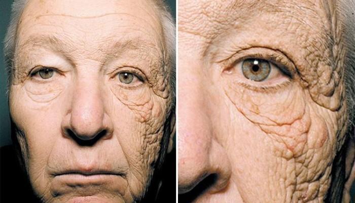 UV okozta fénykárosodás